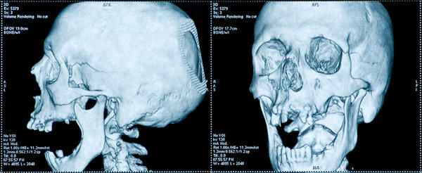 How common is a skull fracture with a small concussion?