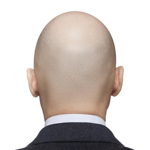 What causes alopecia?I just found a bald spot in the back of my head thats the size of a half dollar.My brother and neice have alopecia.
