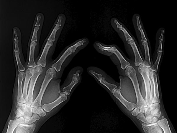 What are signs of a hand fracture?