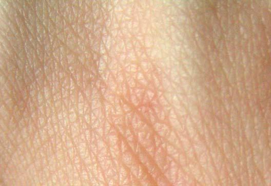 I have this red itchy bump with a black center & it is not a ingrown hair or a blackhead it's not a rash its on my inner thigh on my right leg?
