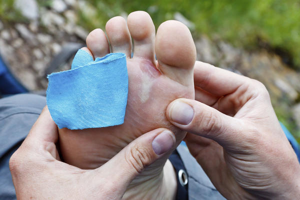 How to treat big blisters on the bottom of your feet?