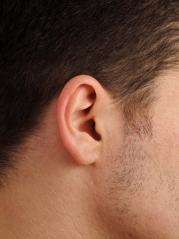 What is the definition or description of: ear swelling?
