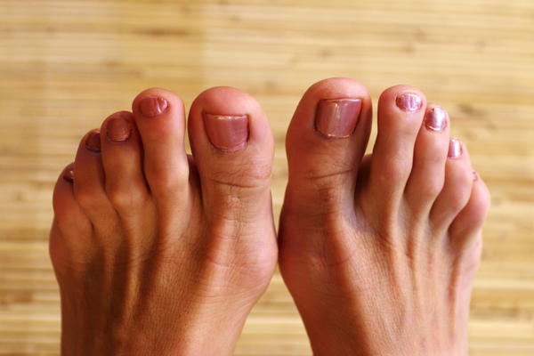 Can weight loss can cause gout?