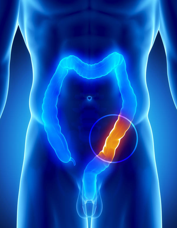 What is the difference between a colectomy and a colonoscopy?