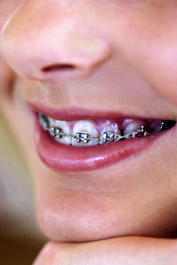 Is it possible for you to tell if you have cavities under your braces?