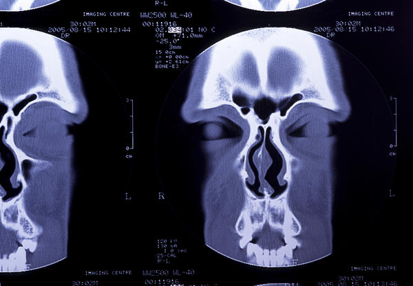 Can a sinus CT scan tell the difference between a mucocele and a cyst?