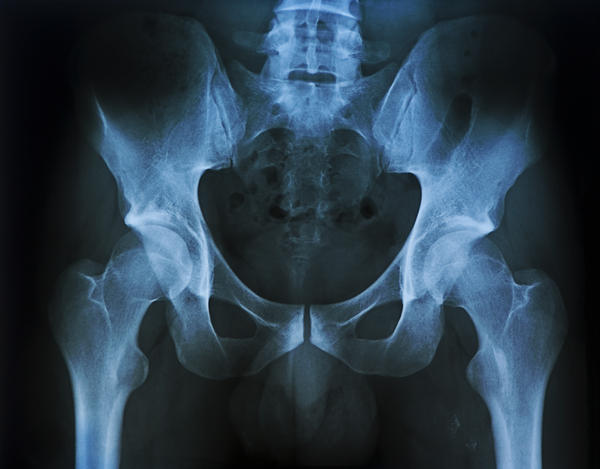 Xray results say 2mm calcification in left side of pelvis & faecal residue throughout the colon What does that mean?