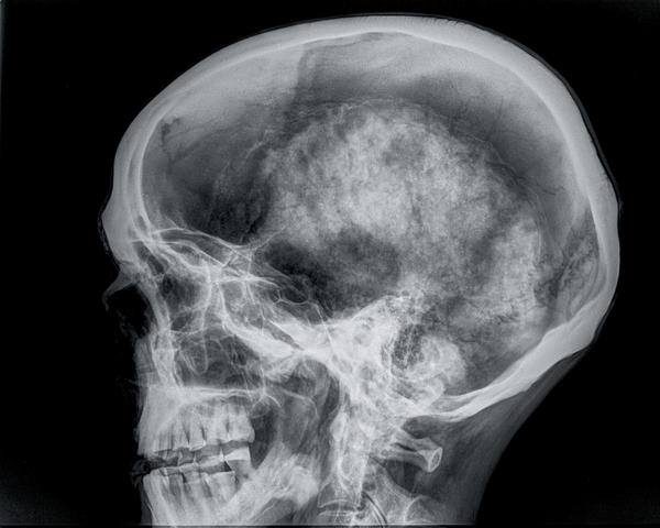 What are air bubbles at the base of your skull caused by?