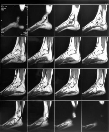 Will at CT scan show ligament/tendon damage? I had bimoeallar ankle factures, would it show the damage to the soft tissue structures of the foot?