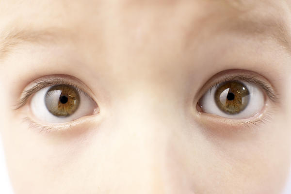 Is it normal for patients with grave's disease to get bulging eyes?