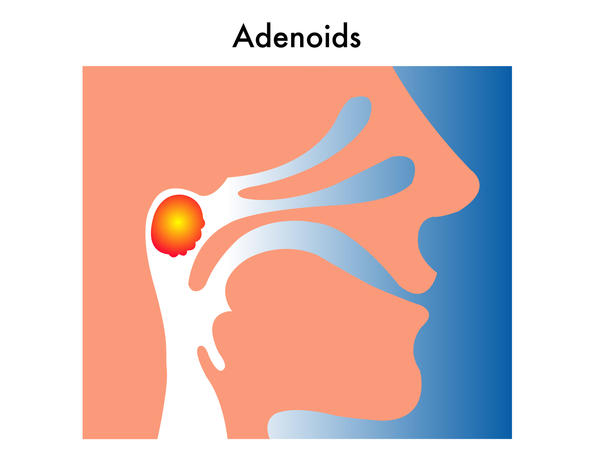 Can you die from adenoiditis?