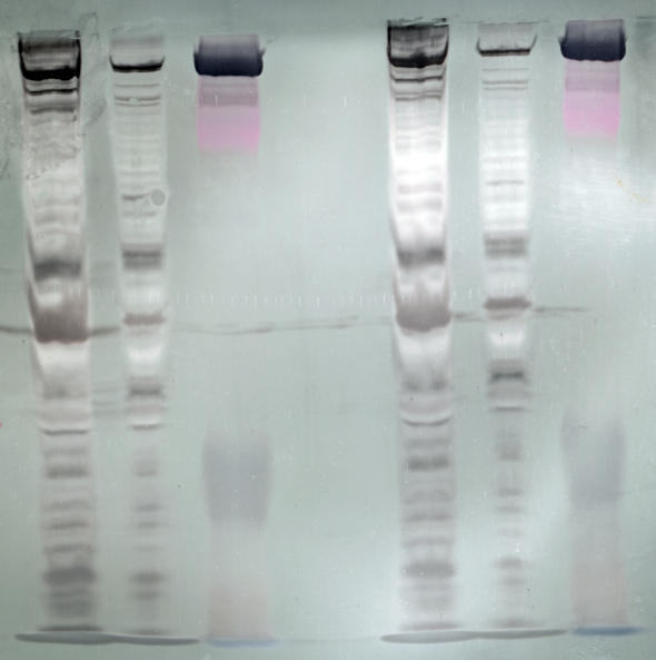 I had normal serum protein electrophoresis. Alpha-1-globulin is 0.25 (0.17 - 0.50 g/dl). Low end of normal? Do i need to test for alpha1-antitrypsin?