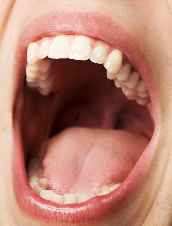 How can you cure tongue ulcers?