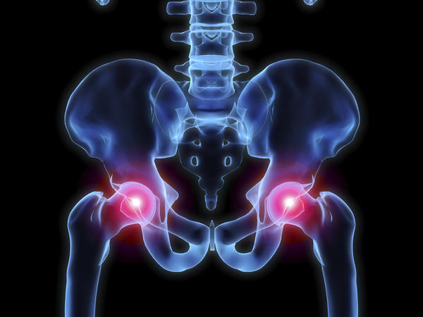 My 67 years old mom has onfh (osteonecrosis of the femeral head) on both hip joints, what's success rate on surgery to replace total hip in her age?