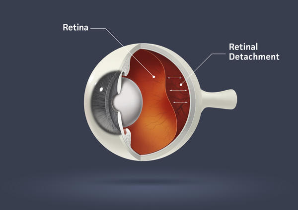 What people are at risk for retinal detachment?