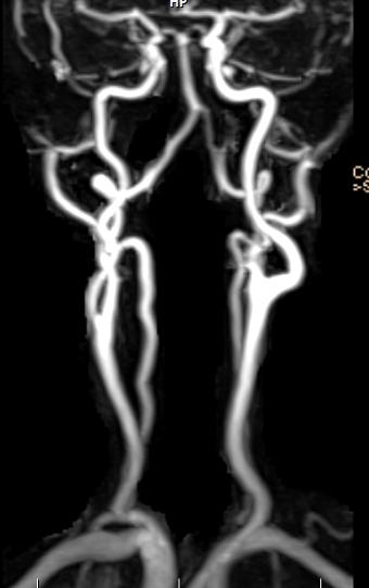What is the definition or description of: magnetic resonance angiography?