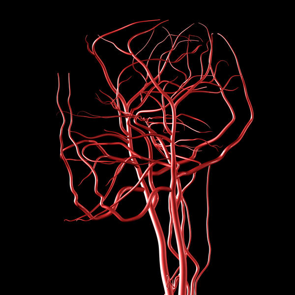 Basilar artery fenestration found (small) no aneurysm. F, age 53.  Scared to death. Overweight, no other health problems. Is HRT ok?