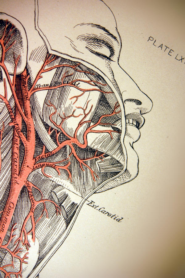 Have you heard of tying a carotid attery off?