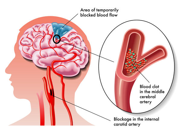 What is a cerebral thrombosis caused by hypertension?