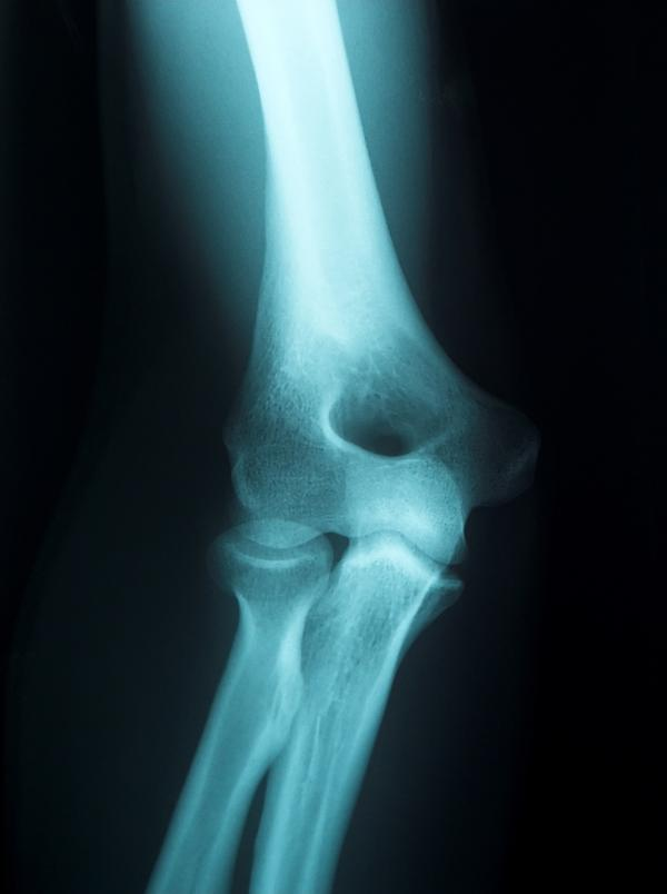 Symptoms of radial head fracture?