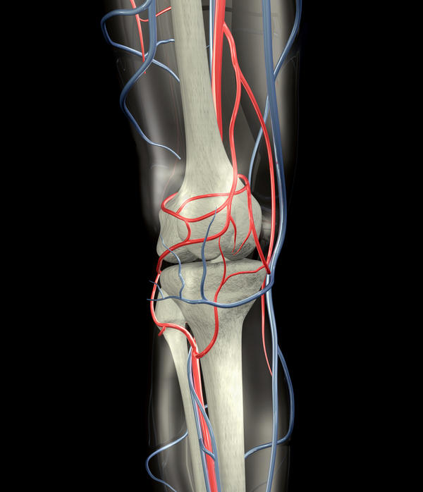 Can you tell me the recovery time after having surgery for a popliteal aneurysm repair?
