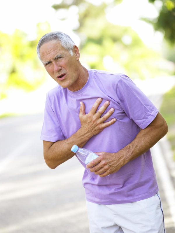 Is there an OTC cure for costochondritis pain?