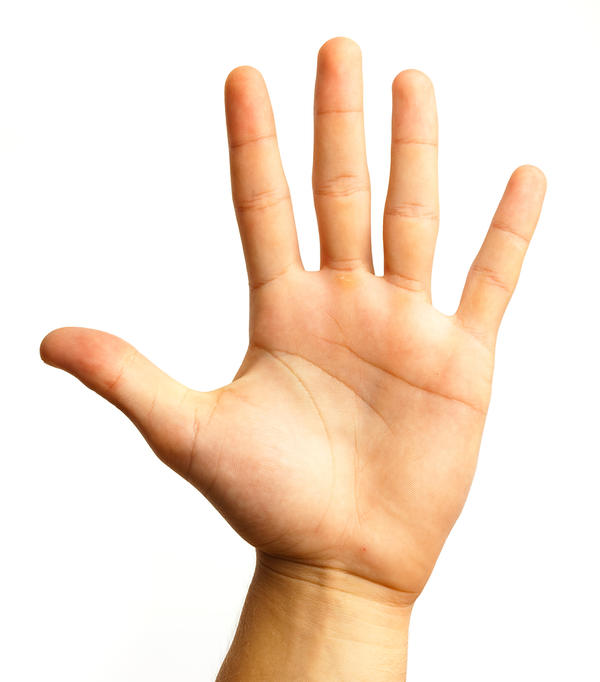 I have very small hands and thin wrists for a man. My 12 year old cousins have same sized hands as mine. What is my case?