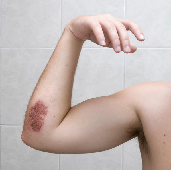 How long do bruises usually remain red for?