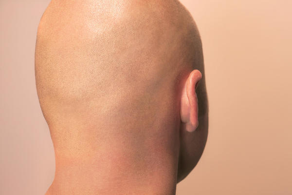 Is there any way to cure alopecia ?