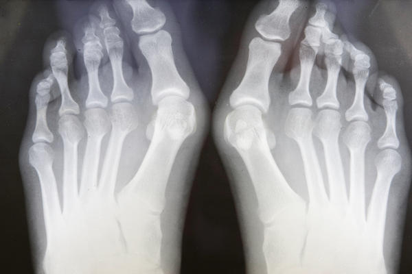 How long would it take for feet to heal after getting bunion surgery? Can you work a kitchen job after?