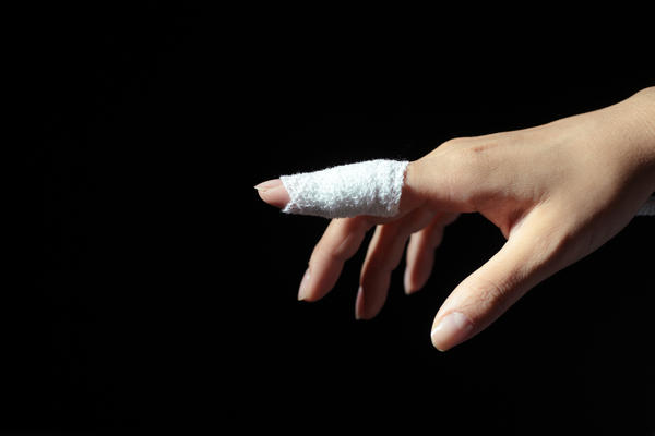 What choices do I have for treating broken finger?