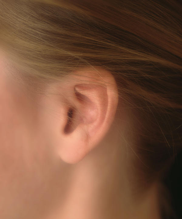 My ears are usually depositing some earwax and sometmes it hurts and has a squeaky sound. what do i do?,