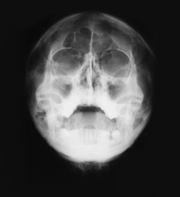 Will I get contrast for a sinus ct?