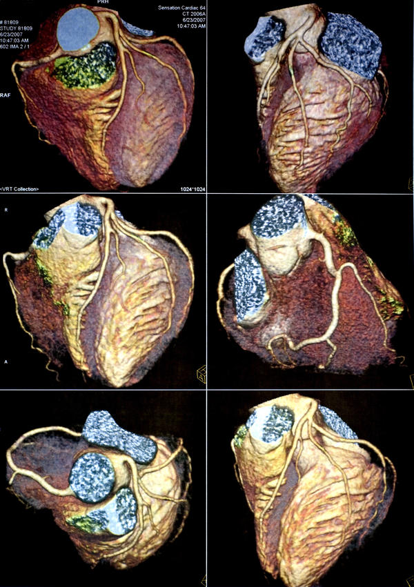 Is coronary cartography reliable alternative to angiography?