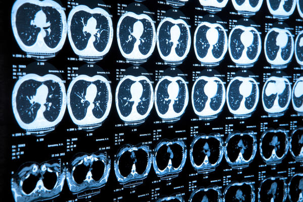 Does pneumonia always show up on a cat scan and an X-ray ?