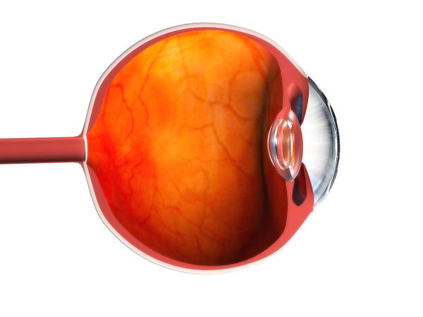 What is the definition or description of: vitrectomy?