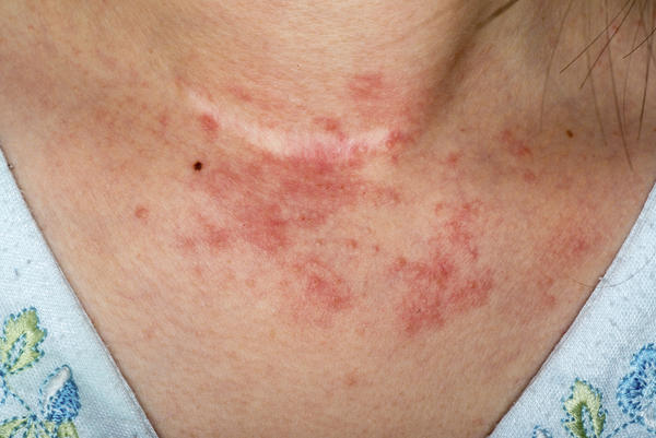I am broke out in an itchy red rash on my back, shoulders and arms. What could be an internal reason for this?