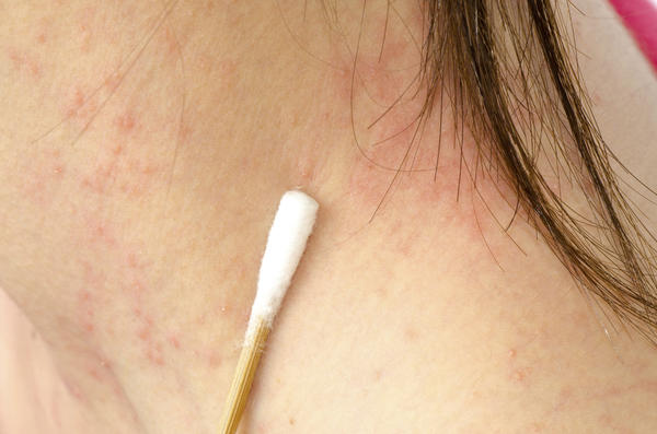 Can stress trigger dermatitis?