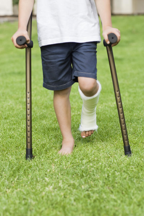 Is it a good idea to use crutches for a bad sprain when you are out moving ?