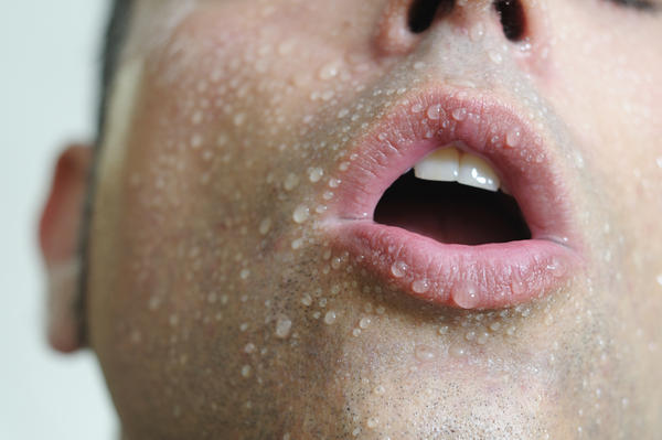 Does hypertension cause excessive sweating or hot flashes?