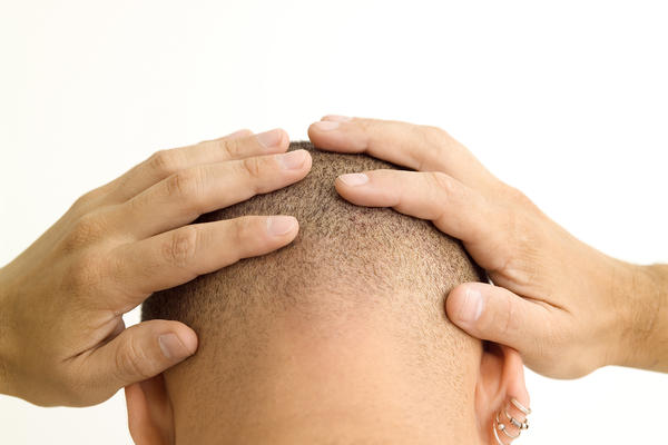 Circle white bald spots on your head with no hair growth?
