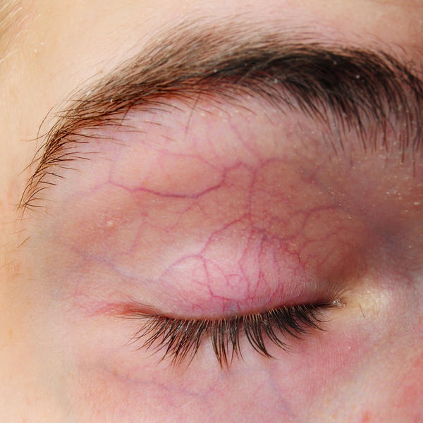 What is the definition or description of: Capillary hemangioma?