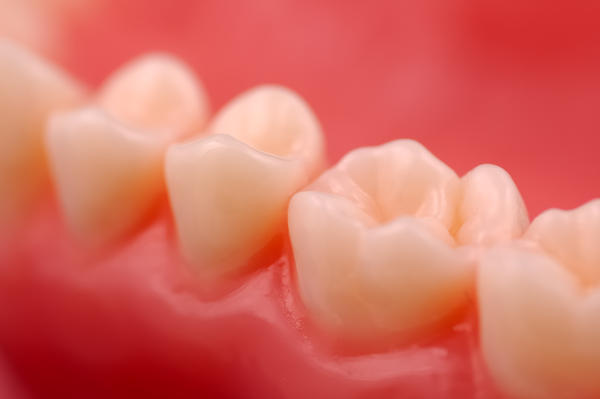 What are the symptoms of rotting gum disease?