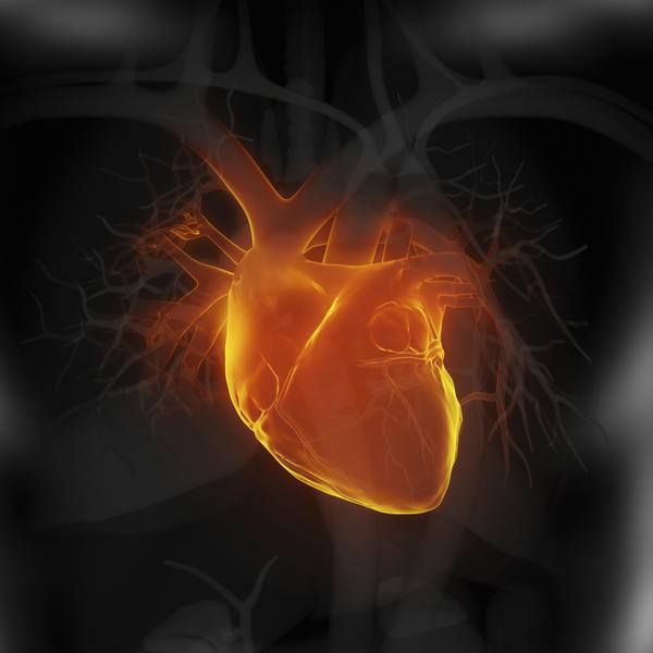 What is a myocardial infarction?