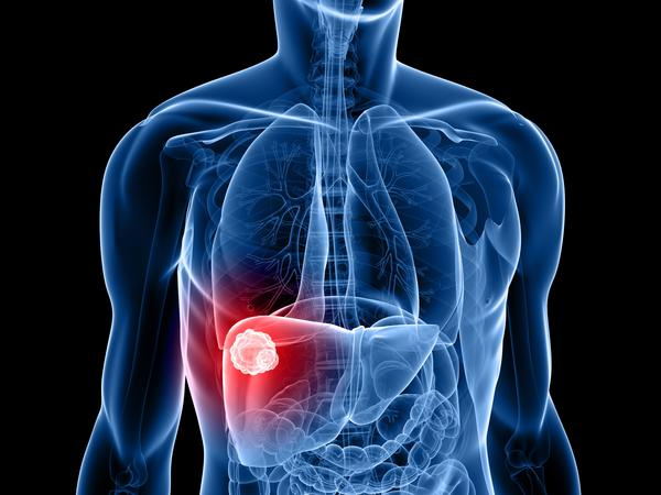 What are the symptoms of hepatocellular carcinoma?