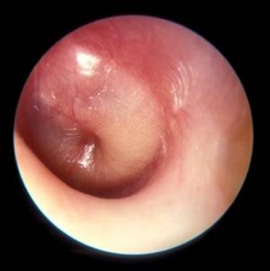 Can there be treatment for an ear infection in someone who was born with holes in the eardrum?