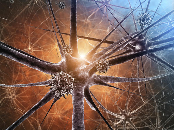 Can gluten and vestibular neuritis be connected?