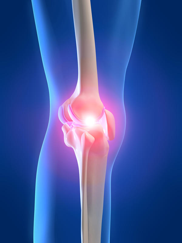 What is the amount of time it take to recover from the removal of a tibial osteochondroma?