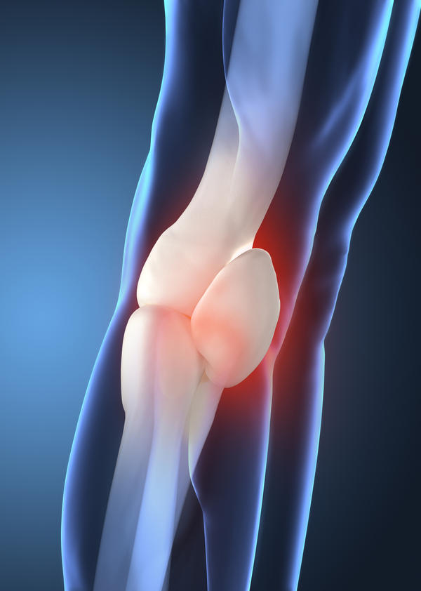 What causes septic arthritis?