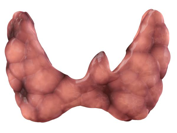 Are thyroid nodules possible in congenital hypothyroidism? 26 female